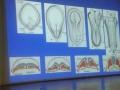 Spina Bifida ve Omurga Cerrahisi Konulu Dayanışma Toplantısı (14)